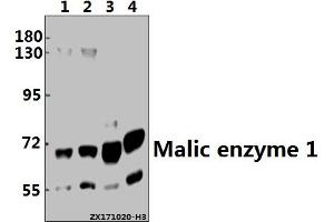 Image no. 1 for anti-Malic Enzyme 1, NADP(+)-Dependent, Cytosolic (ME1) (AA 450-550) antibody (ABIN6713522)