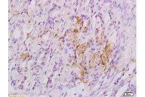 Immunohistochemistry (IHC) image for anti-EIF4EBP1 antibody (Eukaryotic Translation Initiation Factor 4E Binding Protein 1) (pThr37) (ABIN682978)