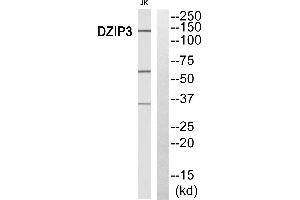 Image no. 2 for anti-DAZ Interacting Protein 3, Zinc Finger (DZIP3) antibody (ABIN1576154)