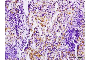 Immunohistochemistry (IHC) image for anti-Mitogen-Activated Protein Kinase Kinase Kinase Kinase 1 (MAP4K1) (AA 150-200), (pSer171) antibody (ABIN710396)