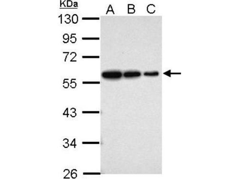 Western Blotting (WB) image for anti-Vimentin (VIM) (Center) antibody (ABIN441334)