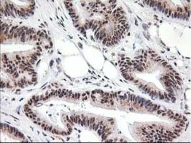 Immunohistochemistry (Paraffin-embedded Sections) (IHC (p)) image for anti-Monoglyceride Lipase (MGLL) antibody (ABIN4335290)