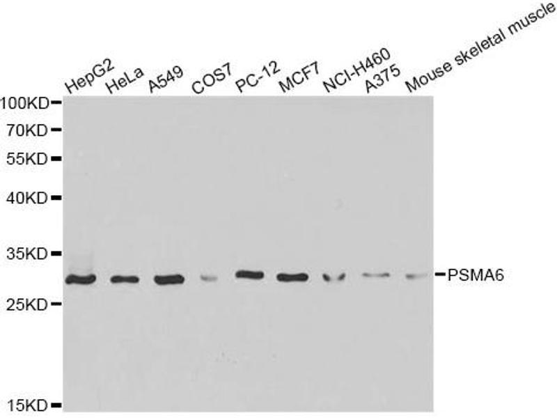 Image no. 1 for anti-Proteasome (Prosome, Macropain) Subunit, alpha Type, 6 (PSMA6) antibody (ABIN6568027)