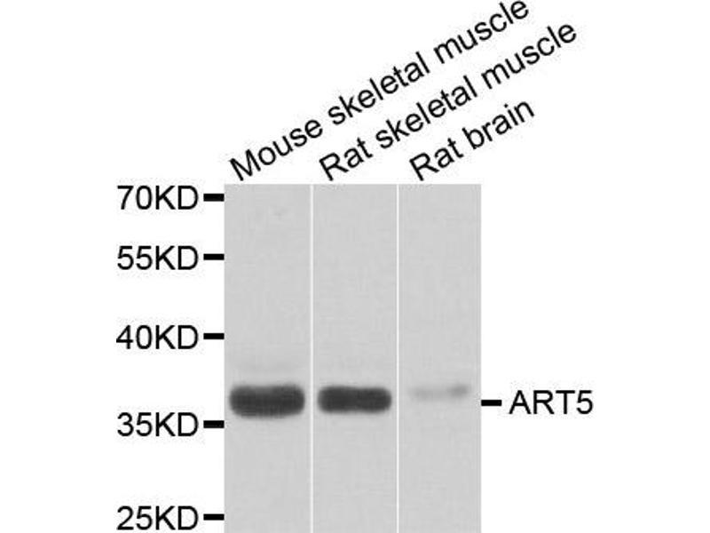 Image no. 1 for anti-ADP-Ribosyltransferase 5 (ART5) antibody (ABIN2561225)