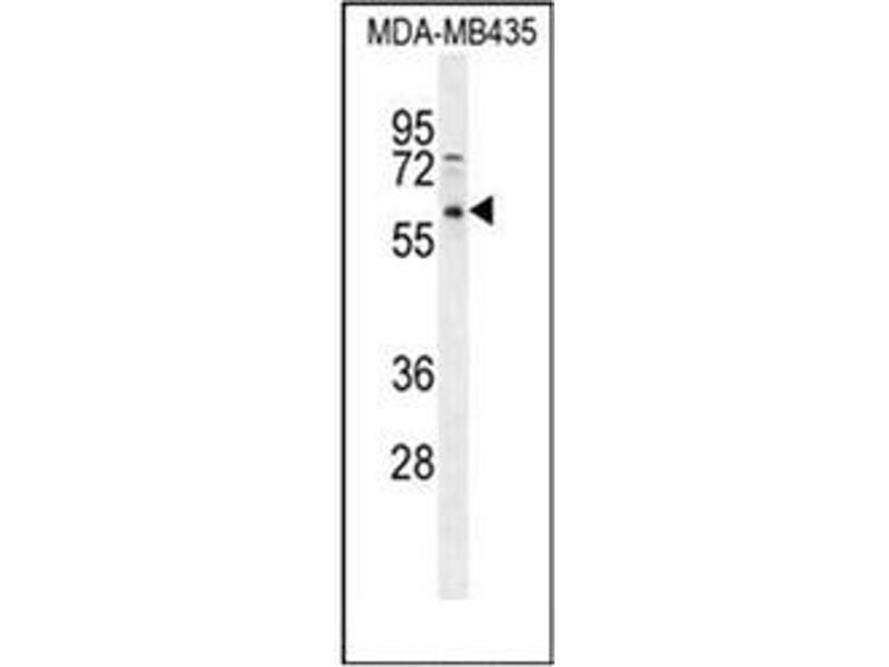 Western Blotting (WB) image for anti-PPP3CC antibody (Protein Phosphatase 3, Catalytic Subunit, gamma Isozyme) (AA 17-45) (ABIN954277)