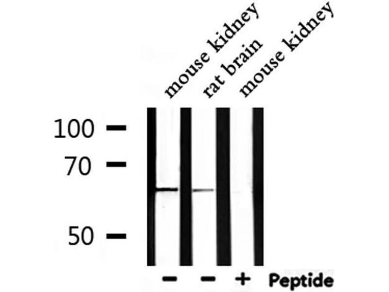 Western Blotting (WB) image for anti-NADPH Oxidase 1 (NOX1) antibody (ABIN6263693)