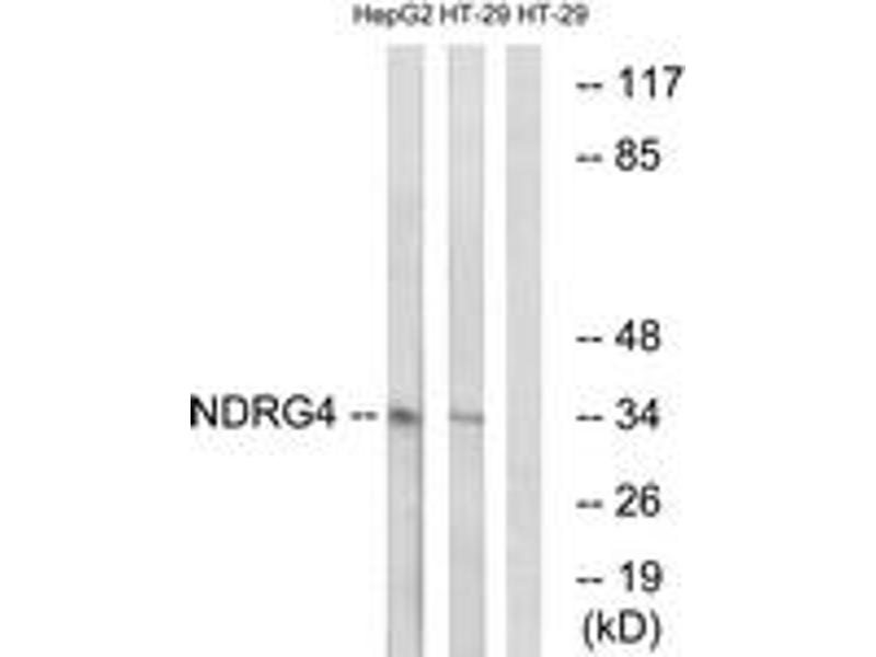 Western Blotting (WB) image for anti-NDRG Family Member 4 (NDRG4) antibody (ABIN1535217)