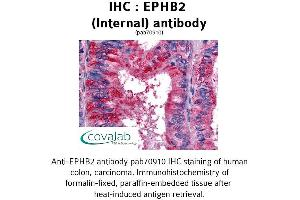image for anti-EPH Receptor B2 antibody (EPHB2) (Internal Region) (ABIN1734081)