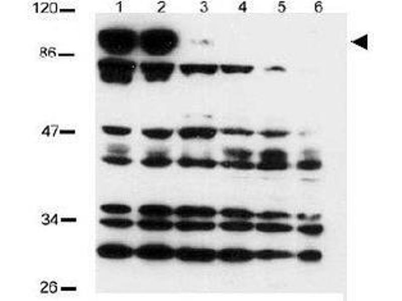 Western Blotting (WB) image for anti-NOTCH2 antibody (Notch 2) (AA 2396-2409) (ABIN269894)