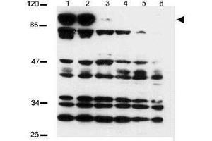 Western Blotting (WB) image for anti-NOTCH2 antibody (Notch 2) (ABIN269894)