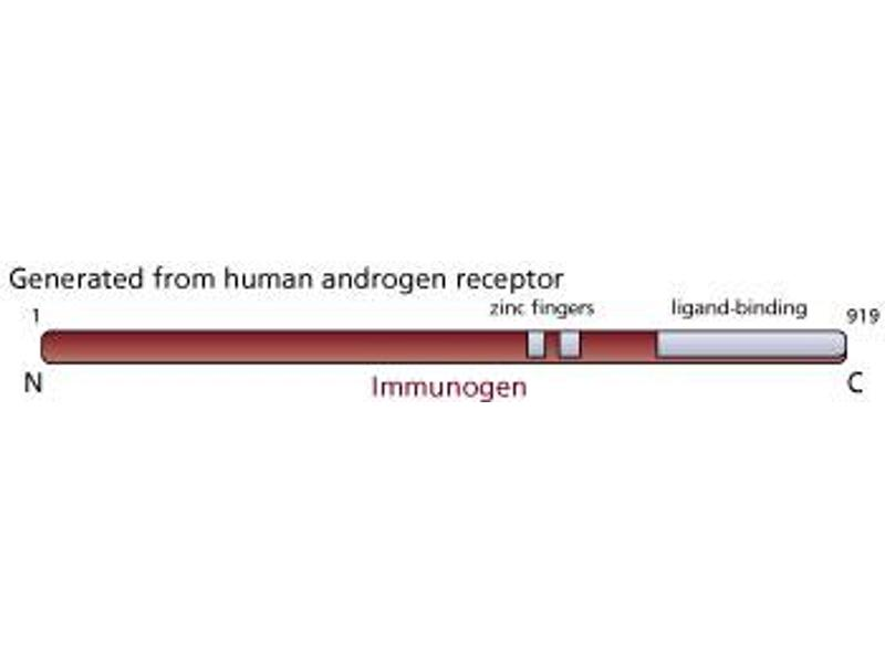 Image no. 2 for anti-Androgen Receptor antibody (AR) (ABIN967444)