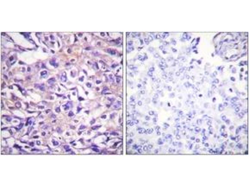 Image no. 1 for anti-Myosin Phosphatase, Target Subunit 1 (PPP1R12A) (AA 661-710), (pThr696) antibody (ABIN1531348)