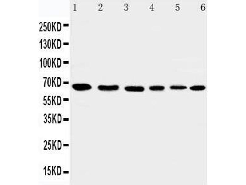 Western Blotting (WB) image for anti-AIFM1 antibody (Apoptosis-Inducing Factor, Mitochondrion-Associated, 1) (AA 596-613) (ABIN3044471)