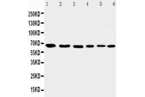 Western Blotting (WB) image for anti-Apoptosis-Inducing Factor, Mitochondrion-Associated, 1 (AIFM1) (AA 596-613), (C-Term) antibody (ABIN3044471)
