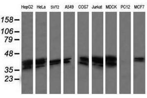 image for anti-MAP2K3 antibody (Mitogen-Activated Protein Kinase Kinase 3) (ABIN1499397)