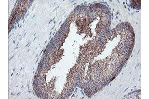 Image no. 12 for anti-Carboxypeptidase A2 (Pancreatic) (CPA2) antibody (ABIN1497596)
