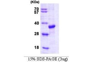 Image no. 1 for STIP1 Homology and U-Box Containing Protein 1 (STUB1) (AA 1-303) protein (ABIN935009)