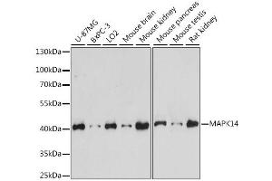 Image no. 2 for anti-Mitogen-Activated Protein Kinase 14 (MAPK14) antibody (ABIN6291833)