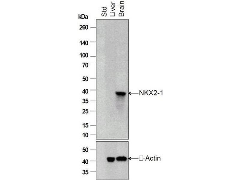 Image no. 1 for anti-TTF-1 / Thyroid-Specific TF (AA 195-245) antibody (ABIN728713)