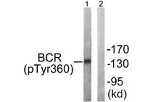 Image no. 1 for anti-Breakpoint Cluster Region (BCR) (AA 331-380), (pTyr360) antibody (ABIN1531493)