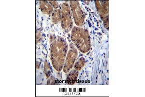 Image no. 3 for anti-Zinc Finger CCHC-Type and RNA Binding Motif 1 (ZCRB1) (C-Term) antibody (ABIN2494392)