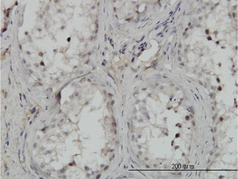 Immunohistochemistry (IHC) image for anti-conserved Helix-Loop-Helix Ubiquitous Kinase (CHUK) (AA 646-745) antibody (ABIN393762)