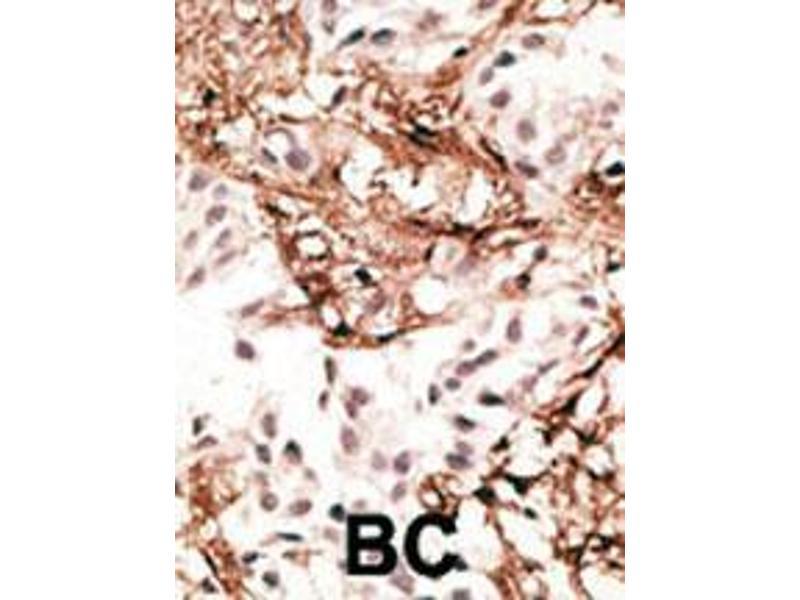 Immunohistochemistry (IHC) image for anti-LC3 (APG8C) (AA 1-30), (N-Term) antibody (ABIN388478)