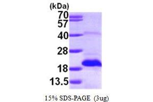 Image no. 1 for Methionine Sulfoxide Reductase B2 (MSRB2) (AA 21-182) protein (His tag) (ABIN667287)