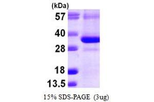 Image no. 1 for CTD (Carboxy-terminal Domain, RNA Polymerase II, Polypeptide A) Small Phosphatase 1 (CTDSP1) (AA 1-260) protein (His tag) (ABIN667902)