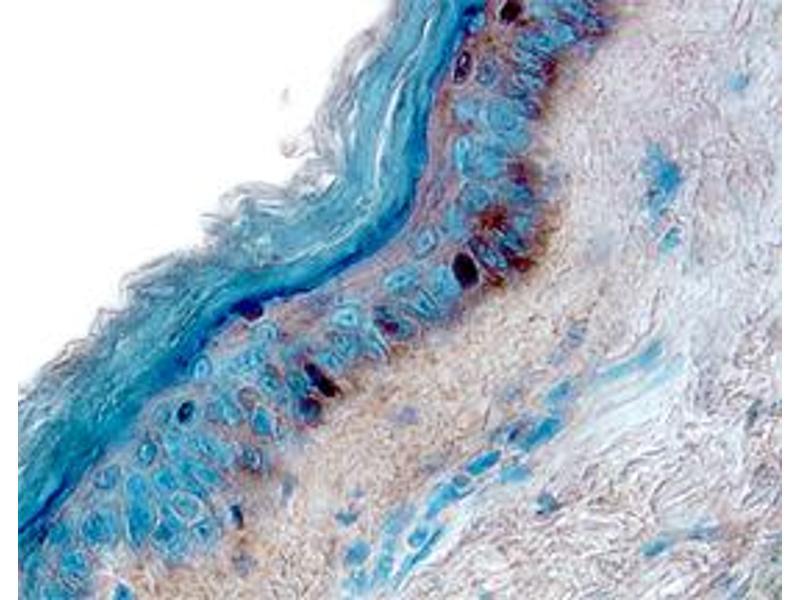 Immunohistochemistry (IHC) image for anti-Interleukin 13 Receptor, alpha 1 (IL13RA1) (AA 27-343), (Thr130Ile-Mutant) antibody (ABIN4900025)