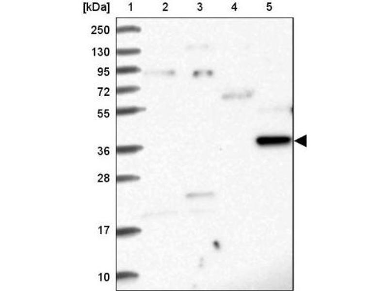 Western Blotting (WB) image for anti-Ras Association (RalGDS/AF-6) Domain Family Member 4 (RASSF4) antibody (ABIN4349452)