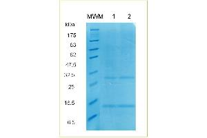 Image no. 1 for Transforming Growth Factor, beta 2 (TGFB2) protein (His tag) (ABIN1112028)
