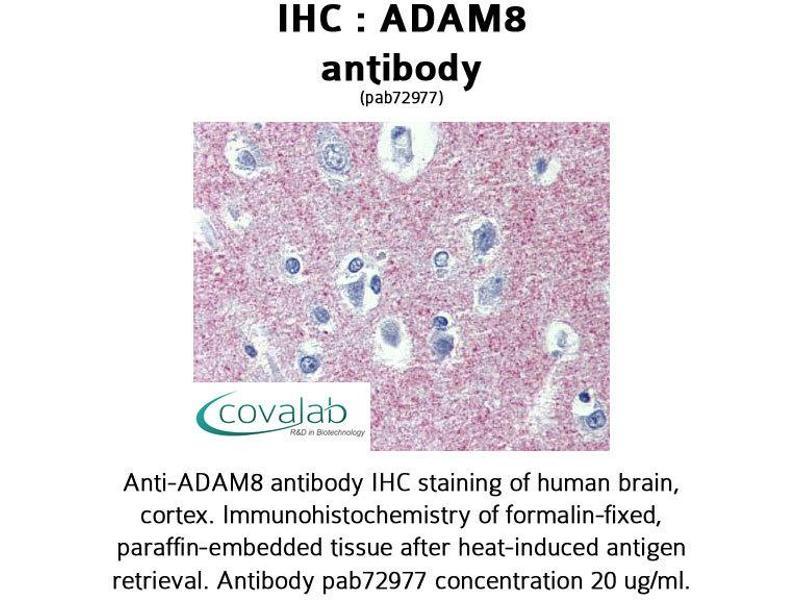 Image no. 1 for anti-ADAM Metallopeptidase Domain 8 (ADAM8) (AA 763-824) antibody (ABIN1731521)