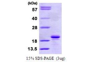 Image no. 1 for Signaling threshold Regulating Transmembrane Adaptor 1 (SIT1) (AA 1-196) protein (His tag) (ABIN6386801)
