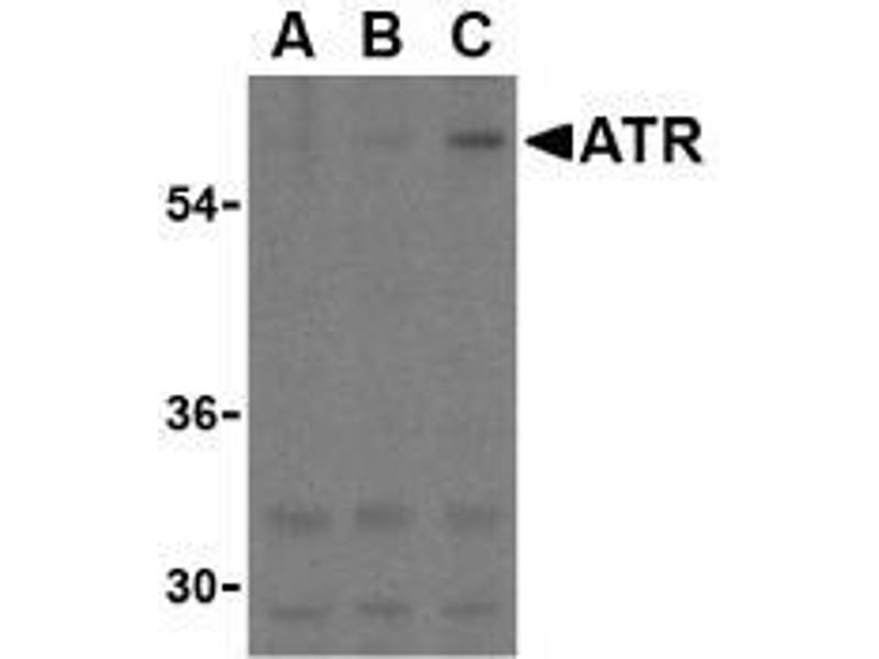 Western Blotting (WB) image for anti-anthrax Toxin Receptor 1 (ANTXR1) (C-Term) antibody (ABIN499365)