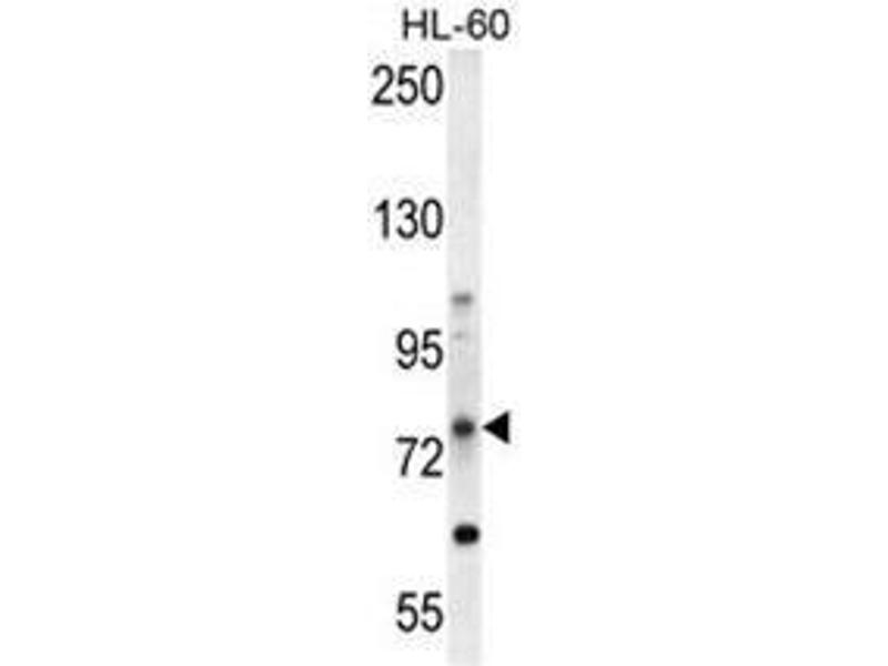 Western Blotting (WB) image for anti-ATP-Binding Cassette, Sub-Family D (Ald), Member 1 (ABCD1) (AA 264-293), (Middle Region) antibody (ABIN950202)