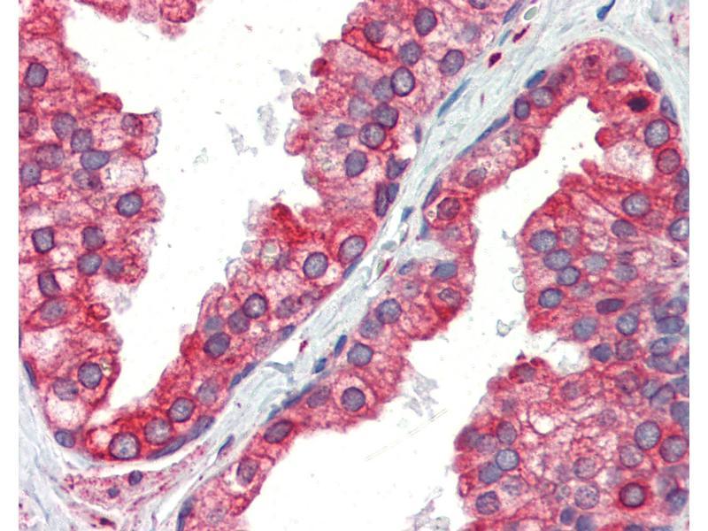 Immunohistochemistry (IHC) image for anti-Calnexin (CANX) antibody (ABIN462107)