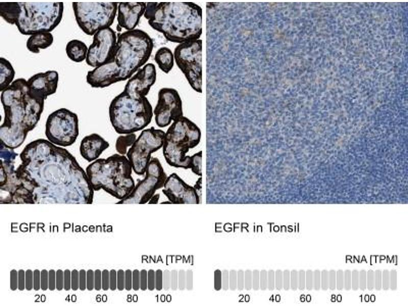 Immunohistochemistry (Paraffin-embedded Sections) (IHC (p)) image for anti-Epidermal Growth Factor Receptor (EGFR) antibody (ABIN4307205)