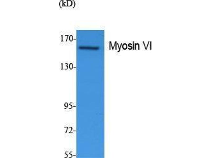Western Blotting (WB) image for anti-Myosin VI (MYO6) (N-Term) antibody (ABIN3187633)