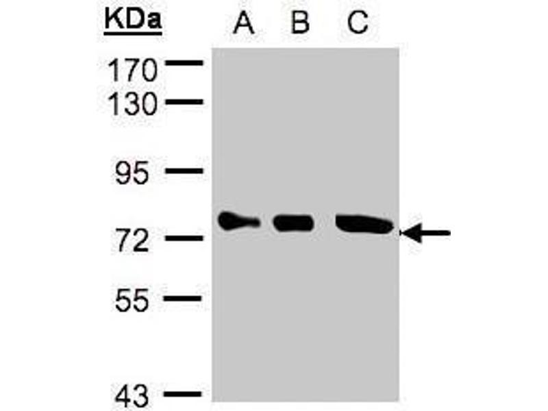 Western Blotting (WB) image for anti-Optineurin (OPTN) (Center) antibody (ABIN2856108)
