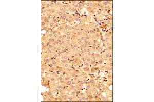 Immunohistochemistry (Paraffin-embedded Sections) (IHC (p)) image for anti-MYD88 antibody (Myeloid Differentiation Primary Response Gene (88)) (ABIN4336944)