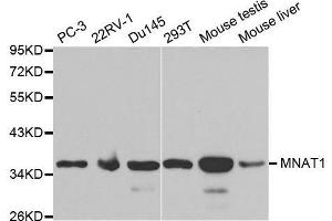 Image no. 2 for anti-Menage A Trois Homolog 1, Cyclin H Assembly Factor (Xenopus Laevis) (MNAT1) antibody (ABIN3022658)
