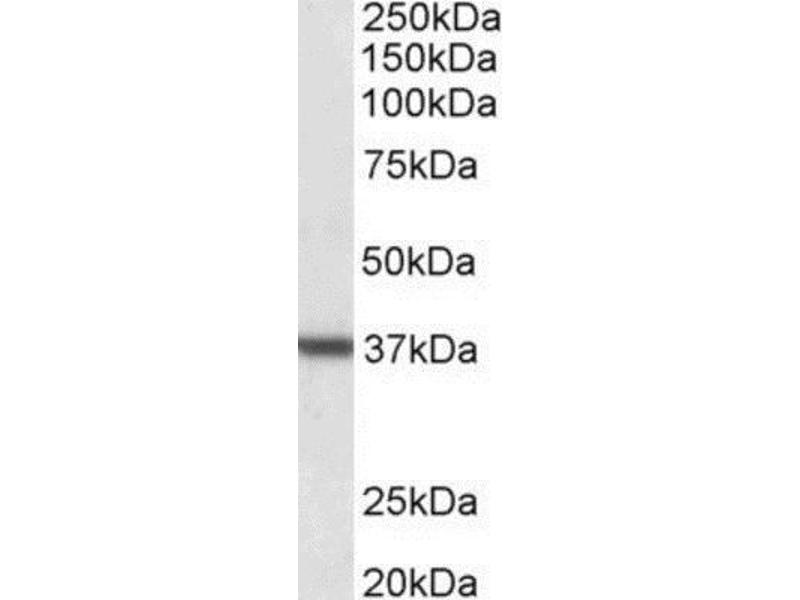 Western Blotting (WB) image for anti-Arginase, Liver (ARG1) (C-Term) antibody (ABIN252946)