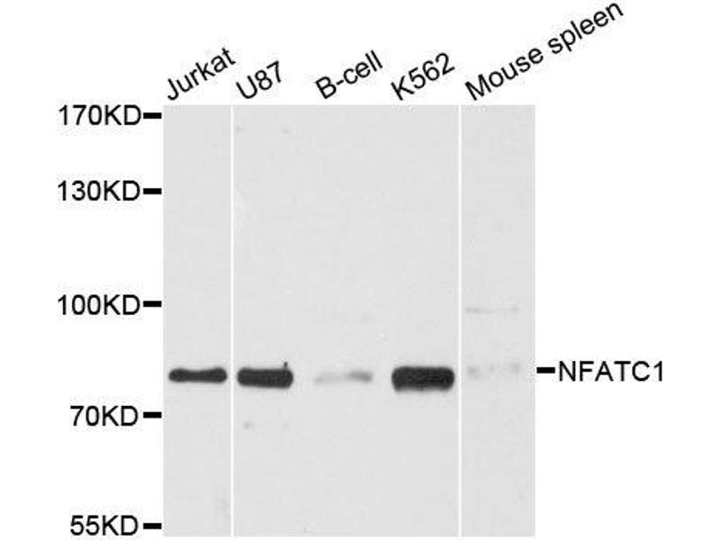 Western Blotting (WB) image for anti-Nuclear Factor of Activated T-Cells, Cytoplasmic, Calcineurin-Dependent 1 (NFATC1) antibody (ABIN3022101)