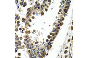 Immunohistochemistry (IHC) image for anti-Activating Transcription Factor 2 (ATF2) antibody (ABIN1871128)