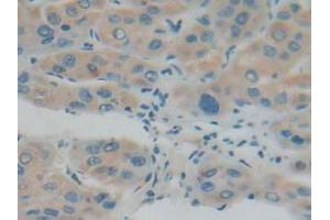 Immunohistochemistry (Paraffin-embedded Sections) (IHC (p)) image for anti-Interferon (Alpha, beta and Omega) Receptor 1 (IFNAR1) (AA 28-227) antibody (ABIN2935140)
