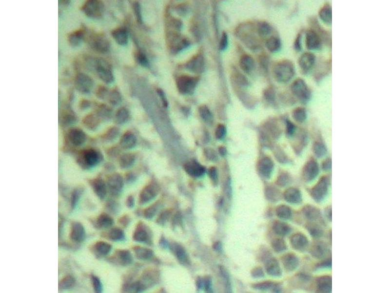 Immunohistochemistry (IHC) image for anti-Cas-Br-M (Murine) Ecotropic Retroviral Transforming Sequence (CBL) (pTyr700) antibody (ABIN3020049)