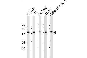 Image no. 2 for anti-Ectonucleoside Triphosphate diphosphohydrolase 2 (ENTPD2) (AA 86-113), (N-Term) antibody (ABIN5535146)
