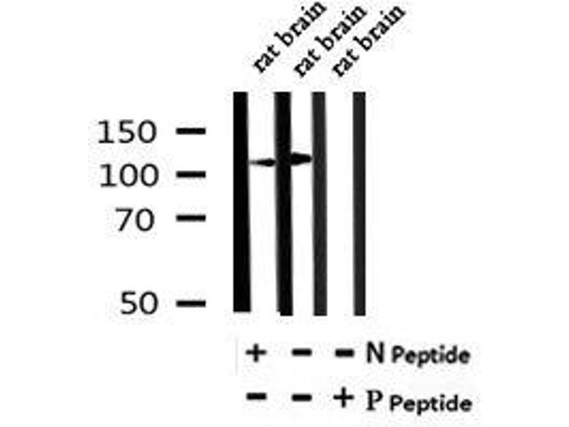 Image no. 4 for anti-Endoplasmic Reticulum To Nucleus Signaling 1 (ERN1) (pTyr628) antibody (ABIN6269719)