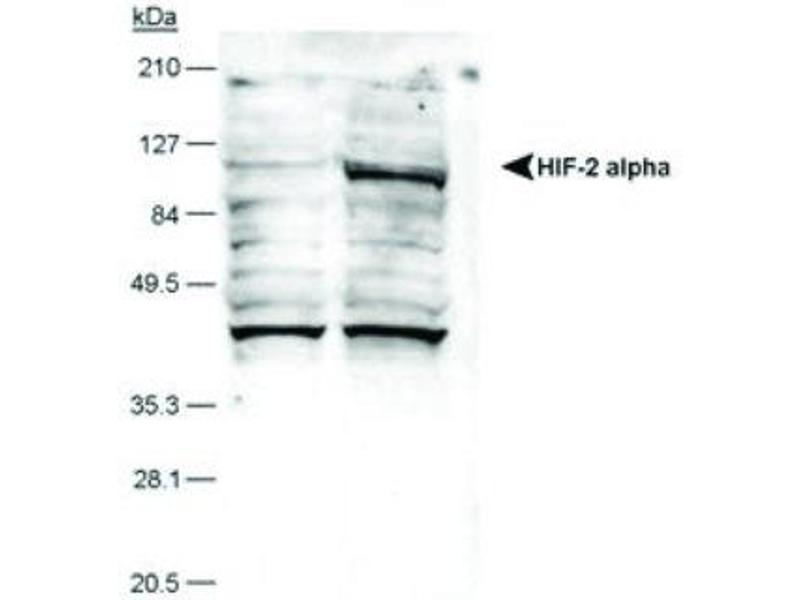 Western Blotting (WB) image for anti-Endothelial PAS Domain Protein 1 (EPAS1) antibody (ABIN151063)